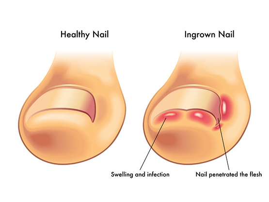 Ingrown Toenails: Symptoms, Causes, Prevention and Treatment ...